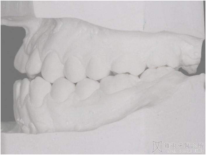 模型-左側咬