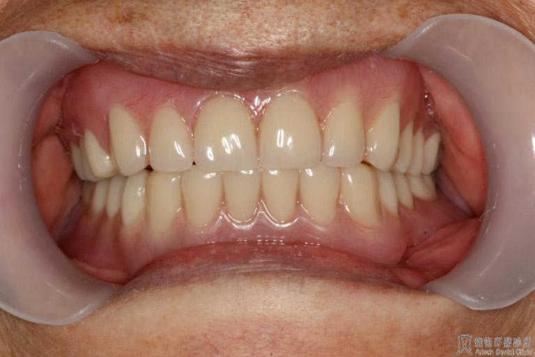 活動假牙11-768x512