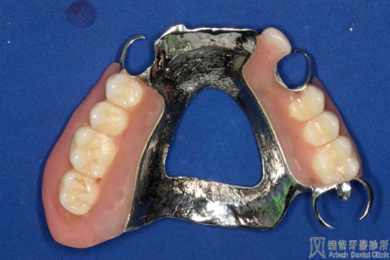 活動假牙2-768x512
