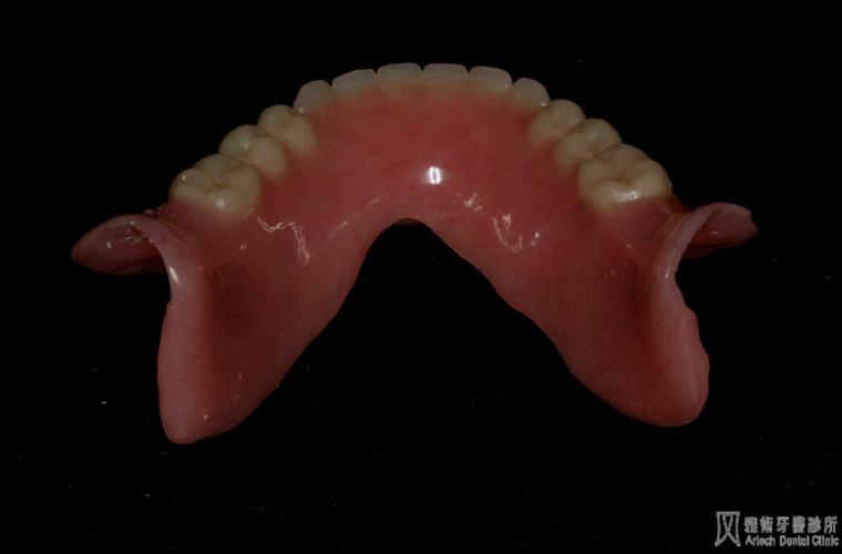 活動假牙6