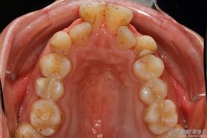 牙弓狹窄-300x200