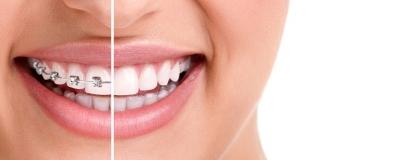 藉由改變牙齒的位置-達到理想的咬合及美觀
