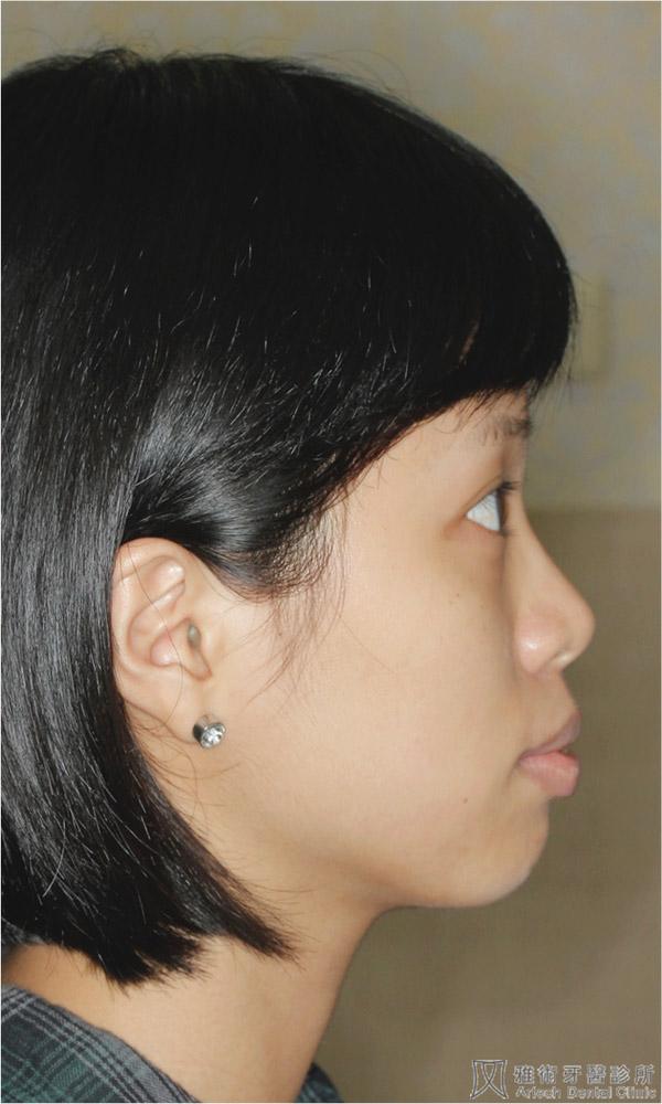 術前-側臉