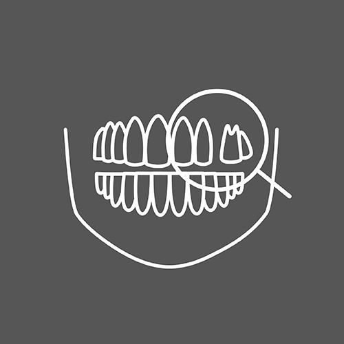 3D植牙流程icon-01