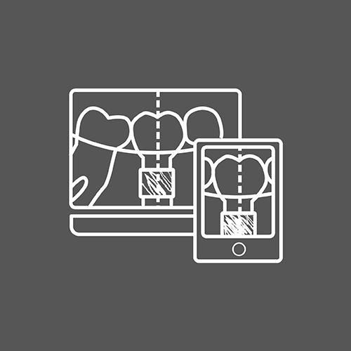 3D植牙流程icon-02